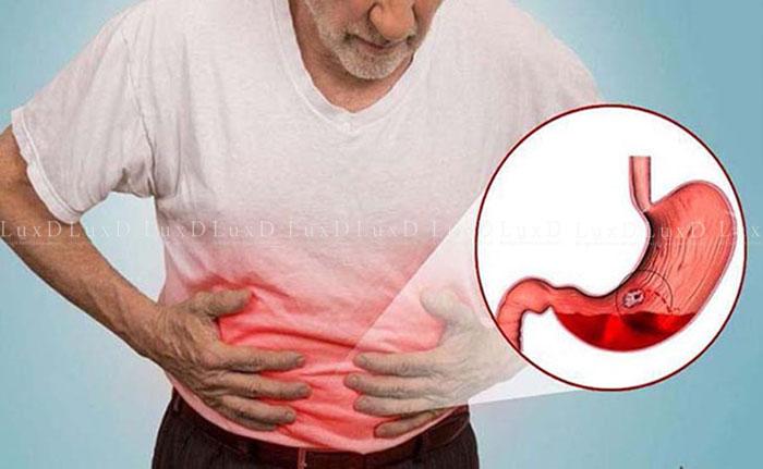 Người đau dạ dày nên hạn chế sử dụng cà phê